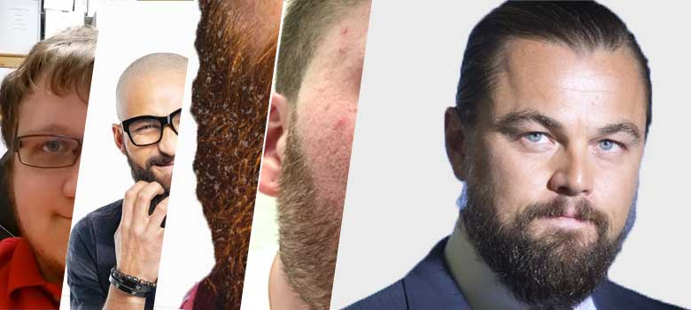 beard problems and solutions