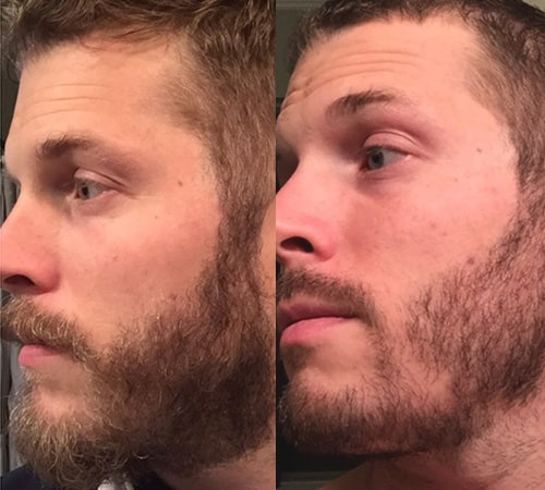 patchy beard before and after